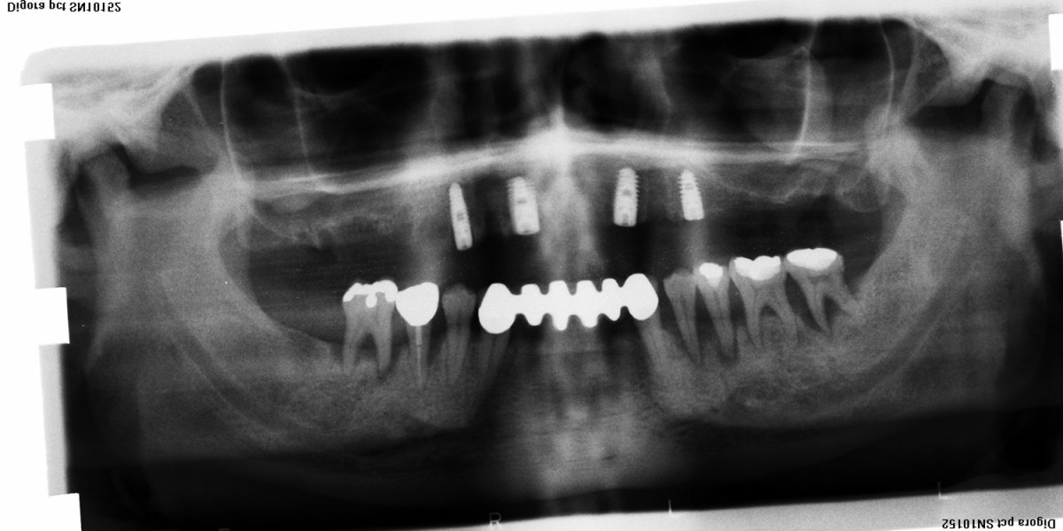 brücke auf zahnimplantate