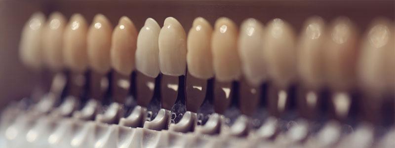 zahnlücke schließen vorderzähne kosten