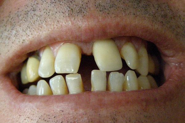 Verdienst Zahnarzt Österreich