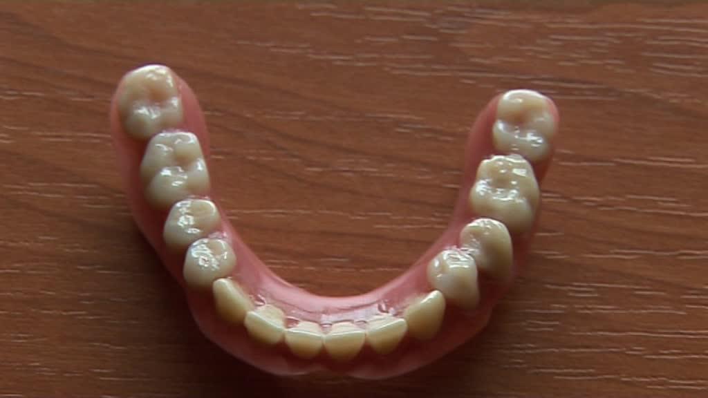 Zahnprothese erfahrungen